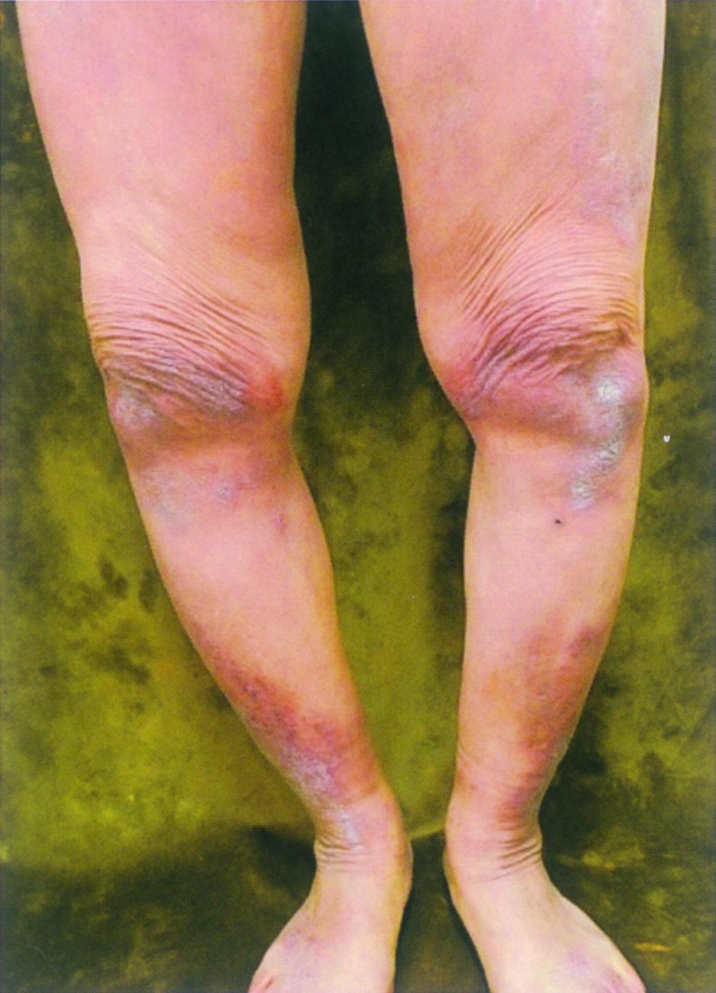 皮膚筋炎についてもう一度勉強し直そう〜前編〜   Dr.渡ブログ 部屋とY ...
